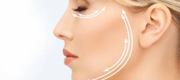 Cirugia facial lifting tercio medio