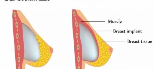 Bottoming out con implantes mamarios