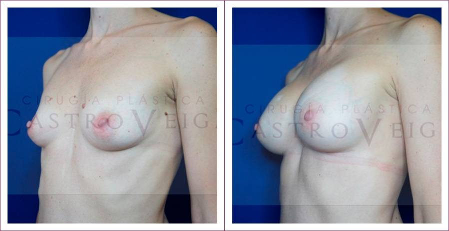 Caso 4: Mamoplastia de aumento submuscular. Implantes anatómicos de 270cc. Vista lateral.