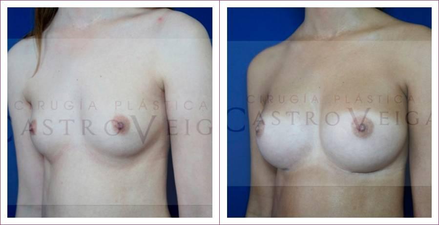 Caso 5: Asimetría mamaria. Implantes submusculares redondos de 260 y 325cc. Vista lateral.