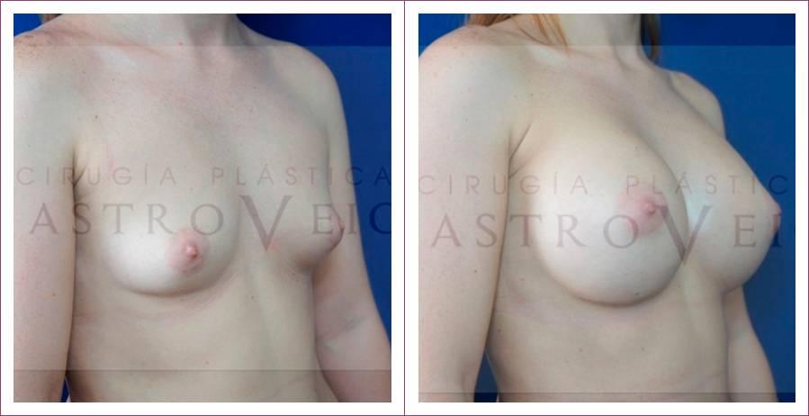 Caso 8: Mamoplastia de aumento submuscular. Implantes redonsos de 360cc. Vista lateral.