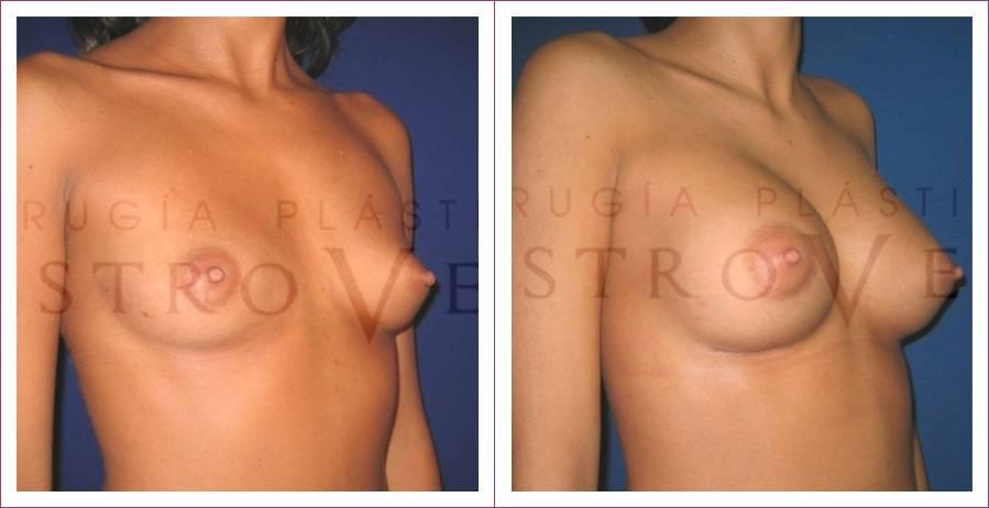 Caso 9: Mamoplastia de aumento submuscular. Implantes anatómicos de 255cc. Vista lateral.
