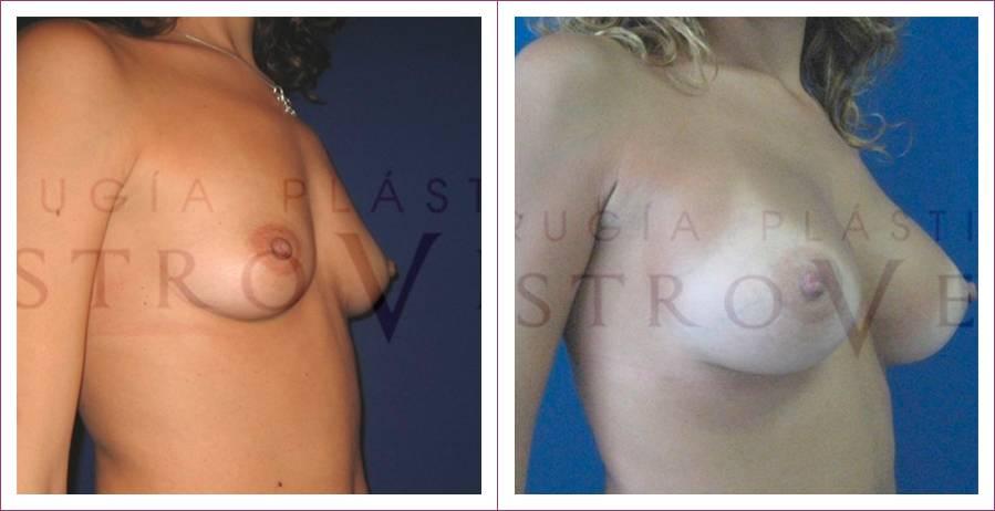Caso 10: Mamoplastia de aumento submuscular. Implantes anatómicos de 295 cc. Vista lateral.