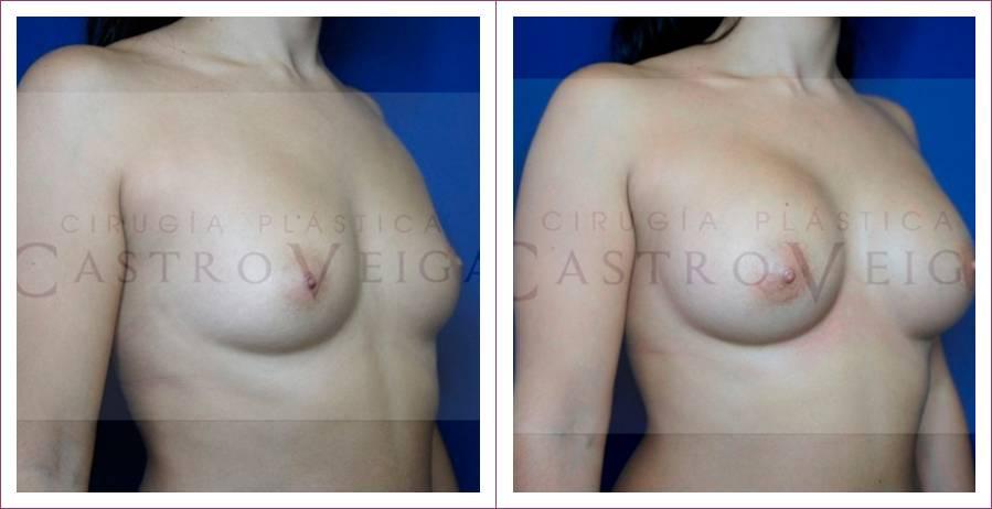 Caso 13: Mamoplastia de aumento submuscular. Implantes redondos de 240cc. Vista lateral.