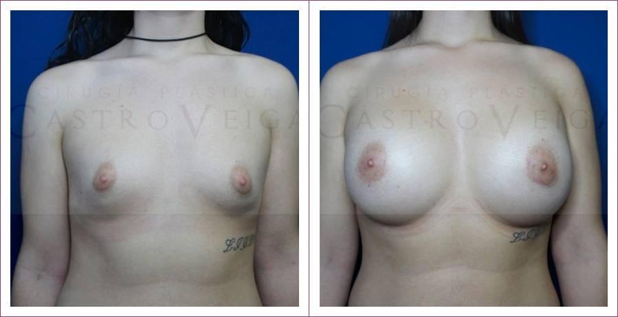 Caso 14: Mamoplastia de aumento submuscular. Implantes redondos de 480cc. Vista frontal.