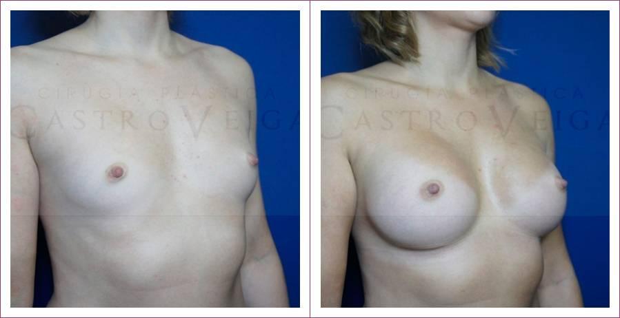 Caso 15: Asimetría mamaria. Implantes anatómicos submusculares de 305cc y 270cc. Vista lateral.