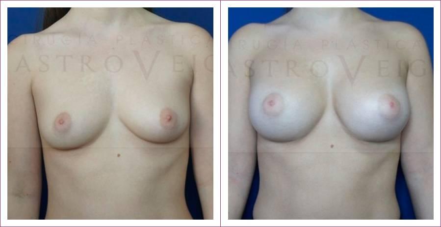 Caso 16: Asimetría mamaria. Implantes anatómicos submusculares de 290cc y 320cc. Vista frontal.