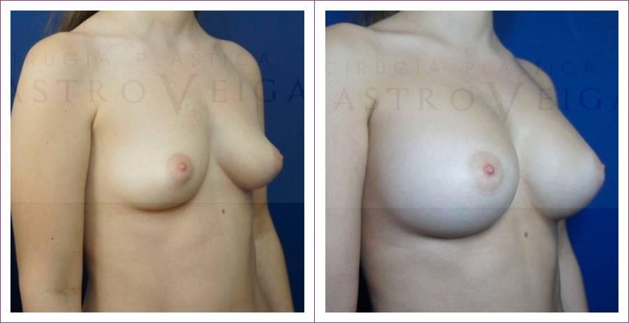 Caso 16: Asimetría mamaria. Implantes anatómicos submusculares de 290cc y 320cc. Vista lateral.