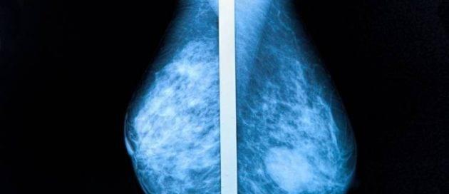 cirugía de aumento mamario con implantes