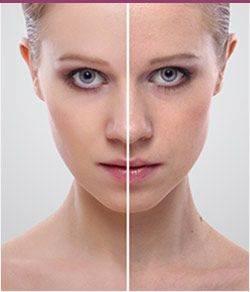 Galería antes y después
