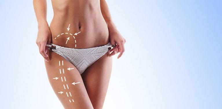 lipoláser o liposucción con láser