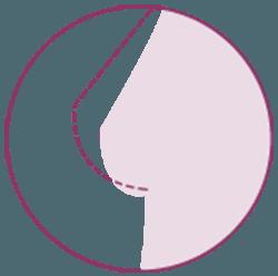mastopexia con implantes o lipofilling