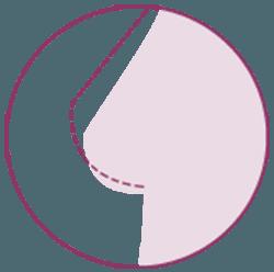 mastopexia sin implantes y sin lipofilling