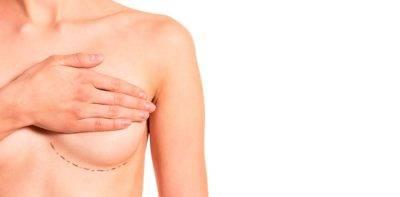 aumentar duración del resultado de la mastopexia