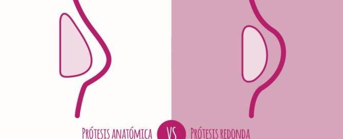 prótesis redondas o anatómicas