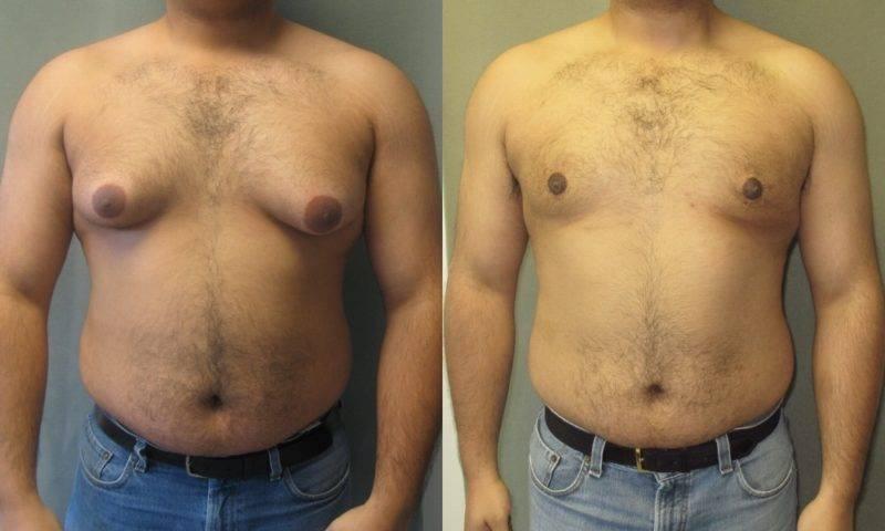 ginecomastia masculina
