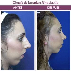 antes y después rinoplastia madrid