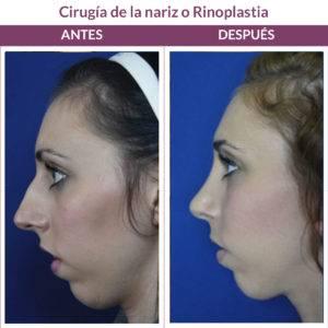 cirugía de la nariz rinoplastia madrid