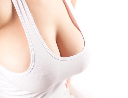 Mitos y verdades del aumento de pecho sin cirugía
