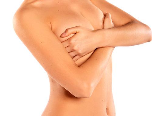 Preguntas frecuentes sobre el aumento de pecho. ¡Resolvemos vuestras dudas!
