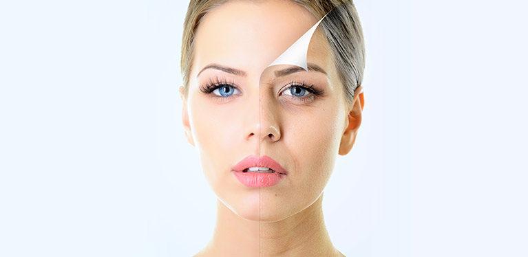 Peeling con PRX-T33: La revolución para tu piel