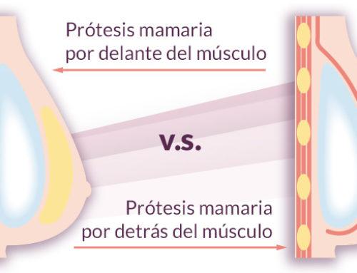 ¿Cómo es mejor colocar la prótesis: delante o detrás del músculo?