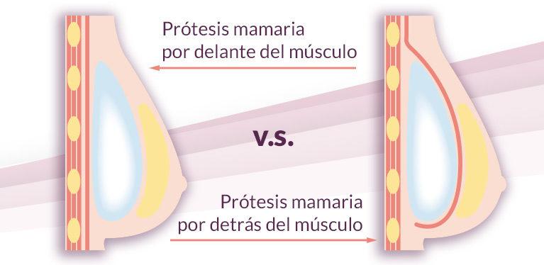 Prótesis mamaria ¿Por delante o por detrás del músculo?