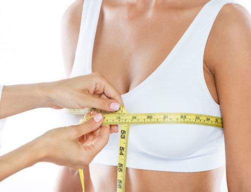 Mastopexia sin prótesis: mejora tus senos sin necesidad de implantes