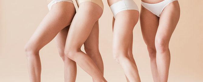 Presume de piernas: liposucción y lifting de muslos