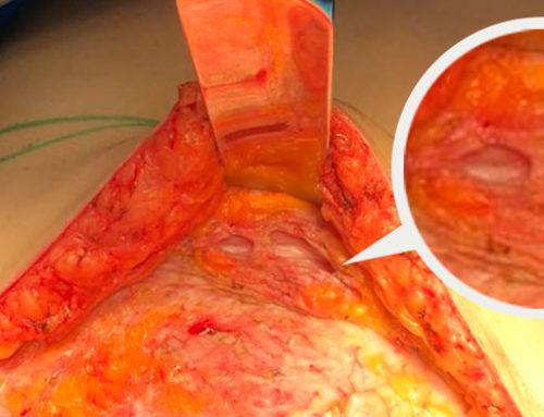 Abdominoplastia sin drenajes: el futuro ya está aquí