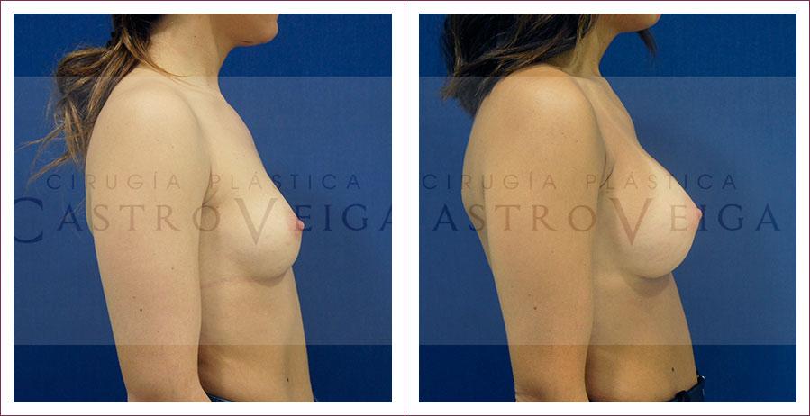 Aumento mamario: postoperatorio de 6 meses de una mamoplastia de aumento con implantes Motiva ergonomicos de 300cc submusculares. Vista lateral derecha.