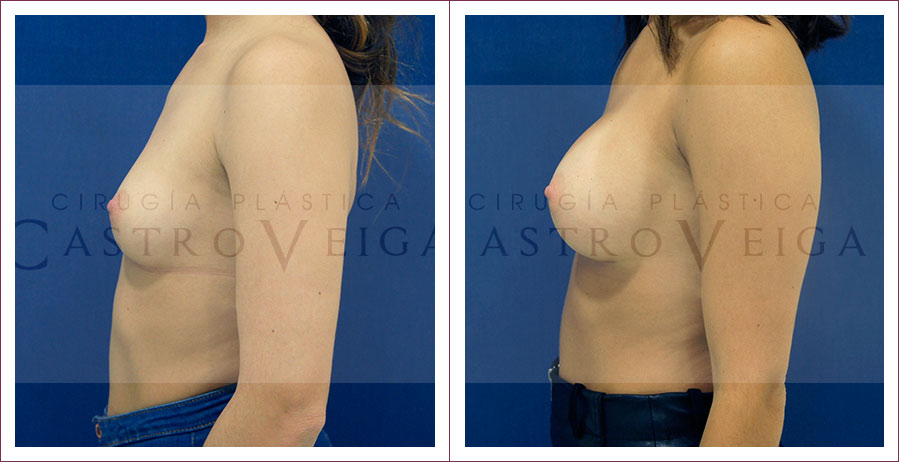 Aumento mamario: postoperatorio de 6 meses de una mamoplastia de aumento con implantes Motiva ergonomicos de 300cc submusculares. Vista lateral izquierda.