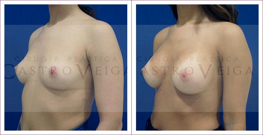 Aumento mamario: postoperatorio de 6 meses de una mamoplastia de aumento con implantes Motiva ergonomicos de 300cc submusculares. Semiperfil Izquierdo