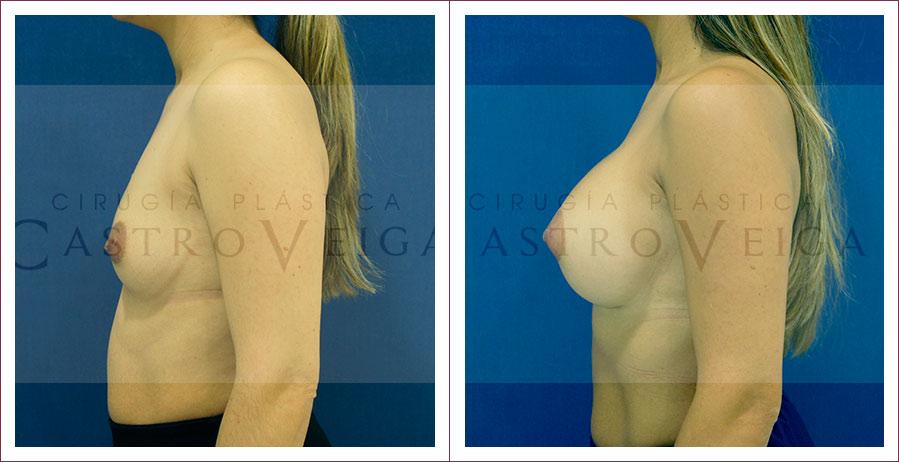 4 meses de una mamoplastia de aumento con implantes redondos de 425cc en mama izquierda y 450cc submusculares. Vista lateral izquierda.