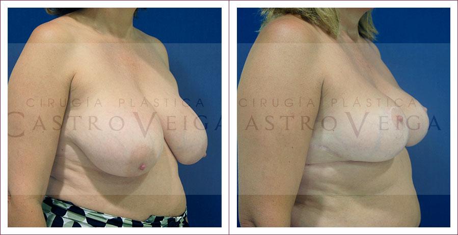 Caso 1: Reducción mamaria:  postoperatorio de 1 año de una mamoplastia de reduccion bilateral de 760cc con cicatriz en T invertida. Semiperfil derecho.