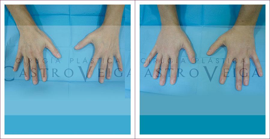 Caso 1: Lipofilling dorso de las manos y dedos.