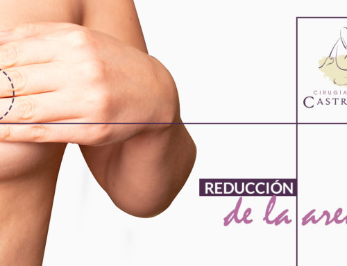 Reducción de pezón o areola: en busca del seno proporcionado