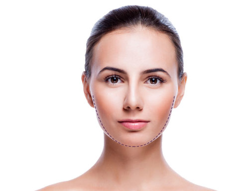 Extirpación de las bolas de Bichat: adelgaza y define tu rostro